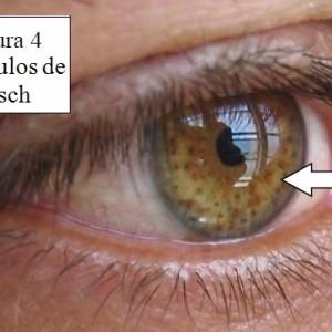 vean la parte coloreada del ojo.